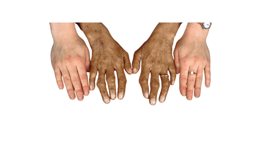 Ironbound - Haemochromatosis effected and normal hand