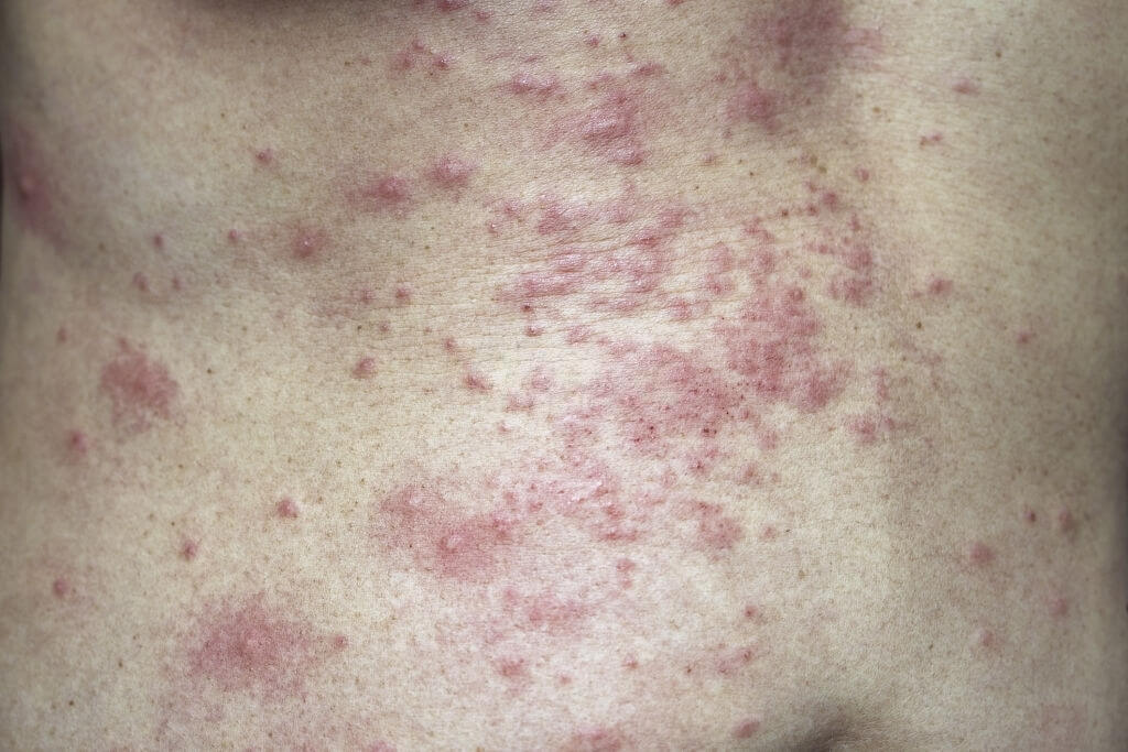 Pediatric Psoriasis And Skin Infections