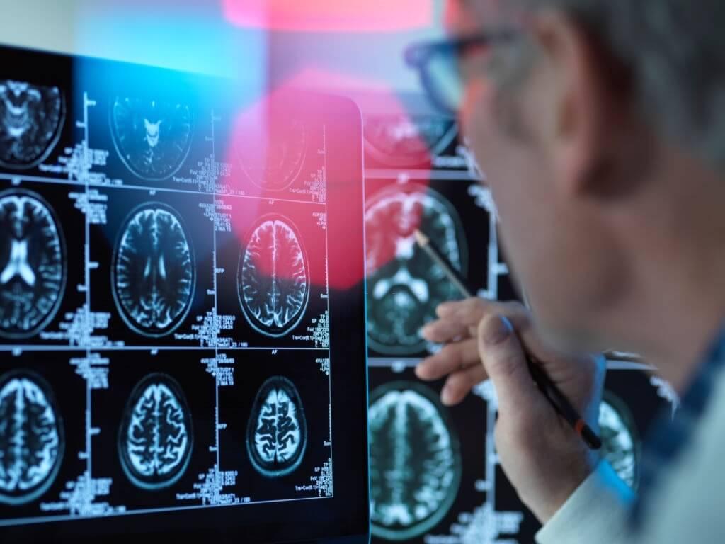 Postponed Retirement Slows Cognitive Decline