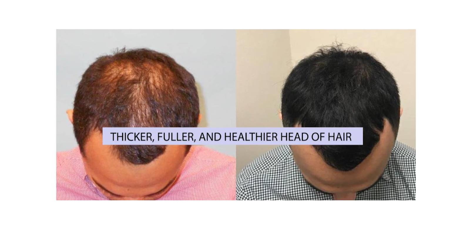 Hair loss supplement Results