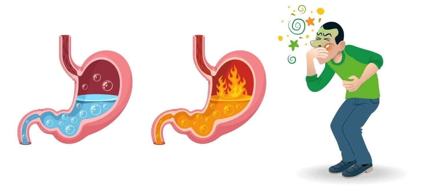 Acid Reflux Strategy Features
