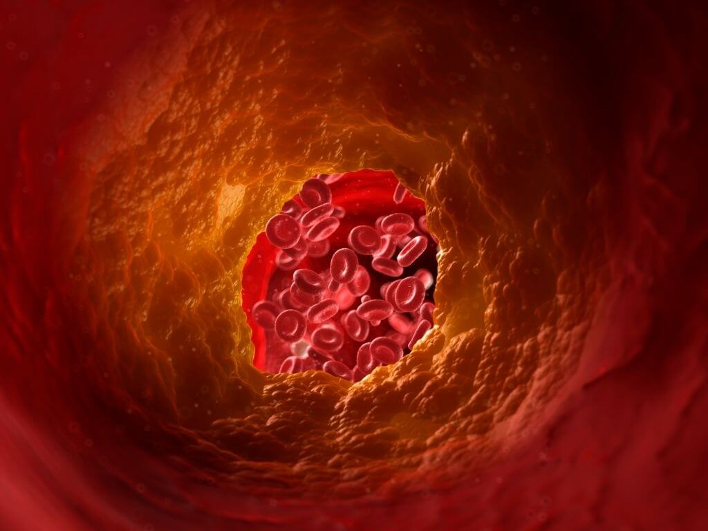 High Cholesterol Condition And What If It's Left Undertreated