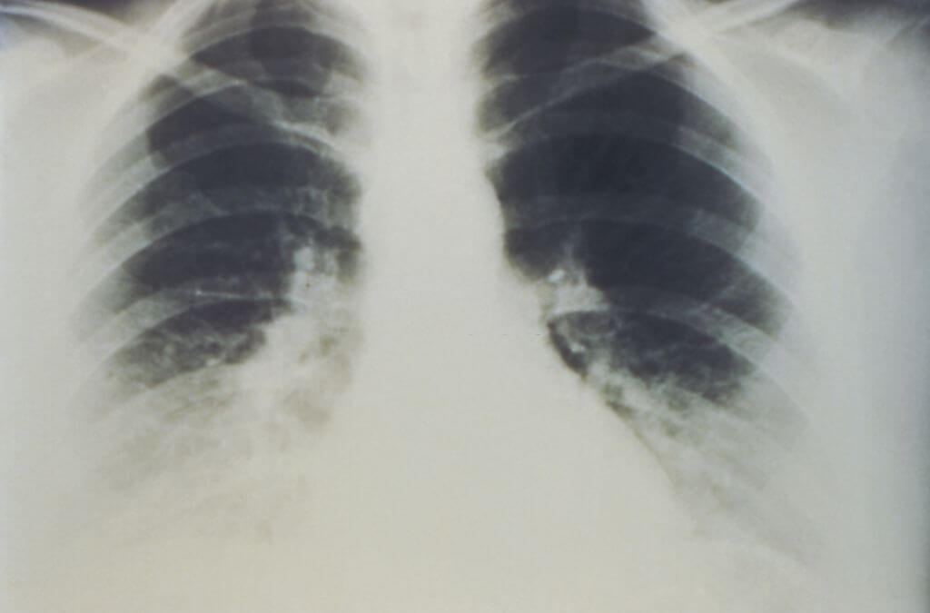 Lung Function Differences Might Spot Risk Of Sudden Cardiac Deaths In People