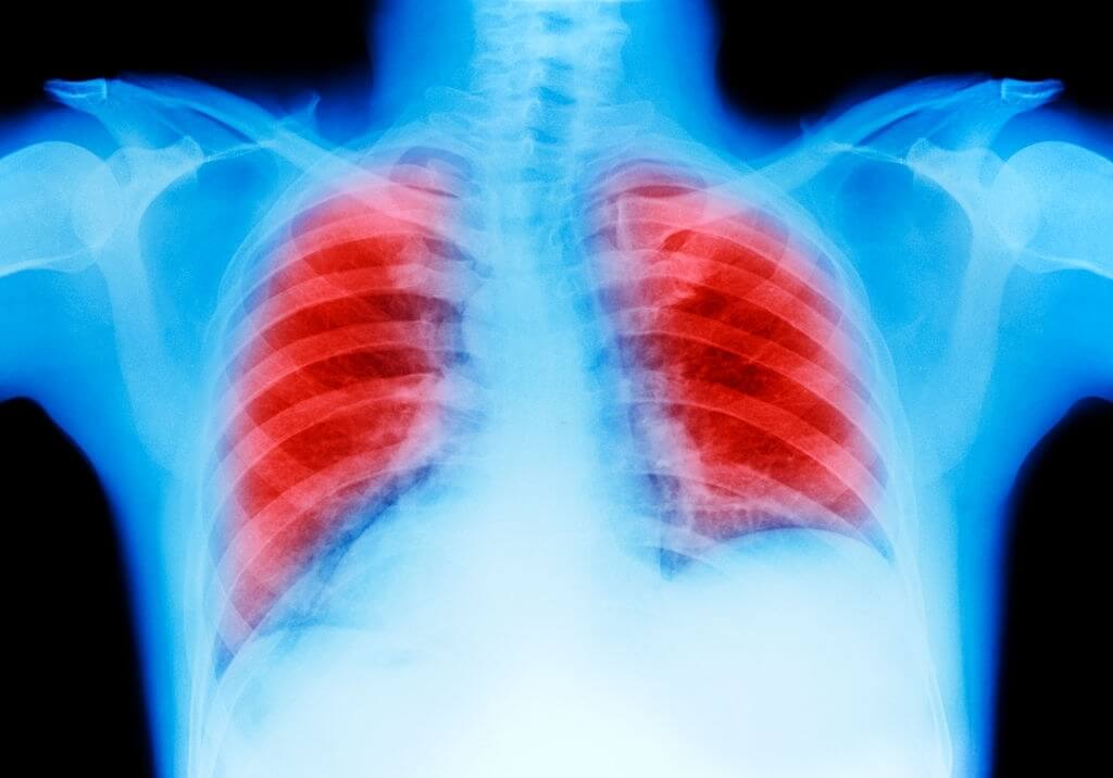 New Research Sheds Light On Never Smoker Lung Cancer
