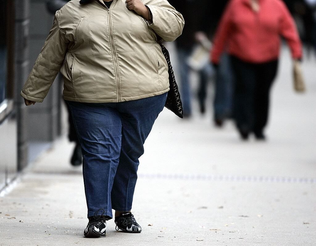 Obesity May Exacerbate COVID-19 Issues