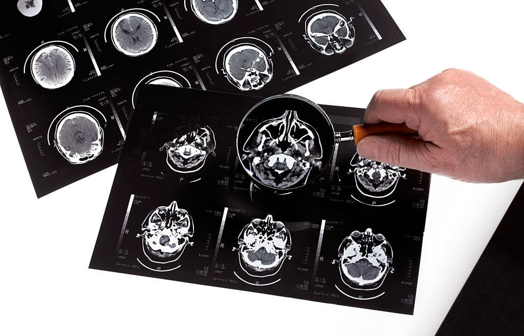 The Algorithm Can Almost Accurately Forecast Alzheimer's